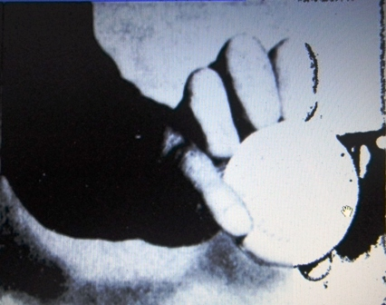 Knuckle ball